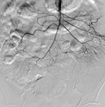 図3: 交通事故による腸間膜損傷– NBCAで塞栓
