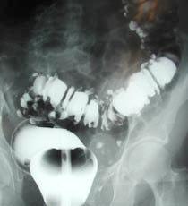 左側大腸の憩室
