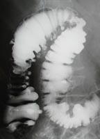 右側大腸の憩室