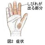 図2 症状