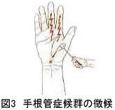 図3 手根管症候群の徴候