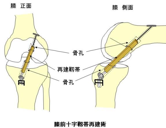 関節鏡視下靱帯再建術