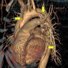 手術前 矢印:血管の裂け目
