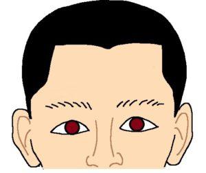 眼瞼下垂なしの状態