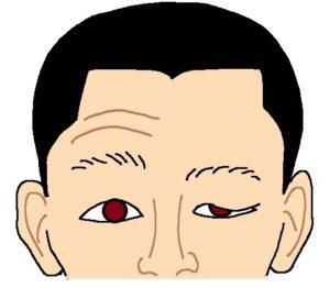 顔面神経麻痺の状態