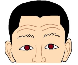 眼瞼下垂の状態
